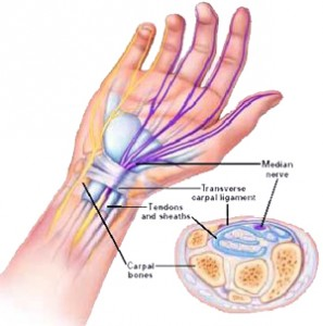 Carpal Tunnel Syndrome: It's Not Your Fault!