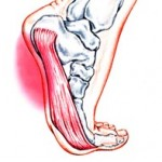 Steps to Avoid Footing Plantar Fasciitis
