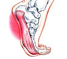 Steps to Avoid Footing Plantar Fasciitis